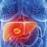 Các giai đoạn bệnh ung thư và khả năng sống sót