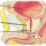 ung thư bàng quang bắt nguồn từ đâu ?