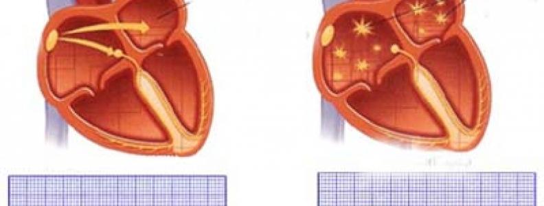 Dấu hiệu cho thấy tim không khỏe mạnh