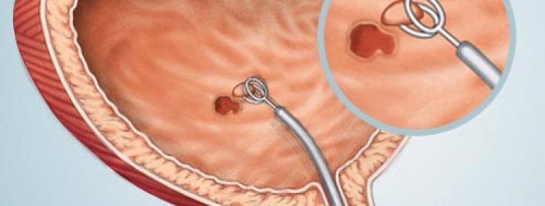 ung thư bàng quang và cách điều trị hiệu quả