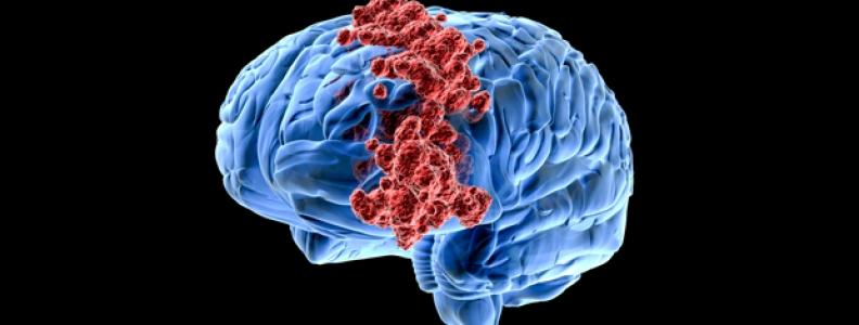 Làm thế nào để tăng tuần hoàn máu não