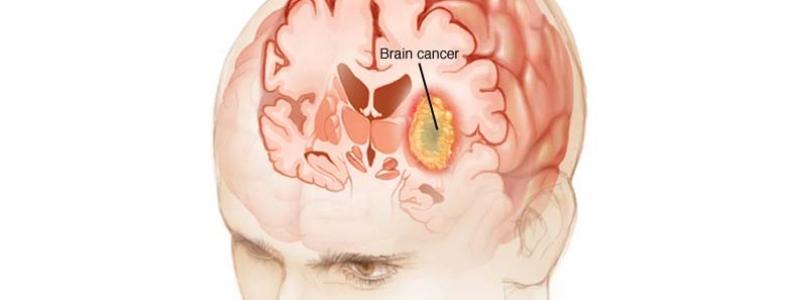 Những câu hỏi liên quan đến ung thư não