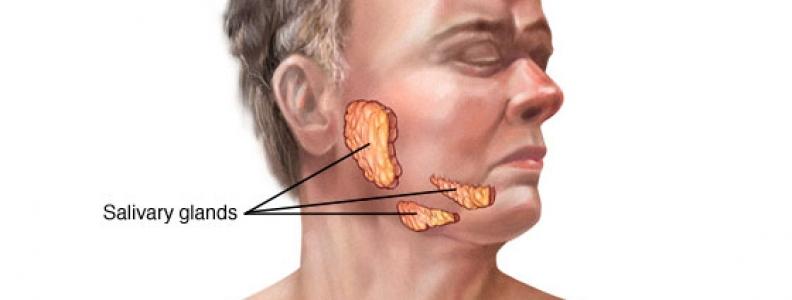 Việc lây nhiễm ung thư tuyến nước bọt